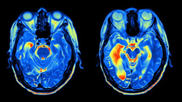 Brain Scans Indicate Brain Health Could Be Tied to Feeling Younger Than Your Age