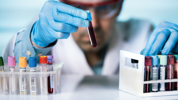 New Blood Test Can Predict Heart Attacks Years In Advance